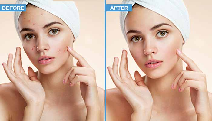 Removing Spots and Blemishes